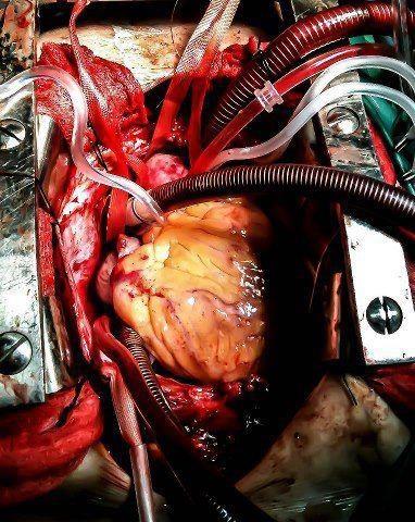 48b89032692cfc4ceae9295546238eff--or-nurse-open-heart-surgery